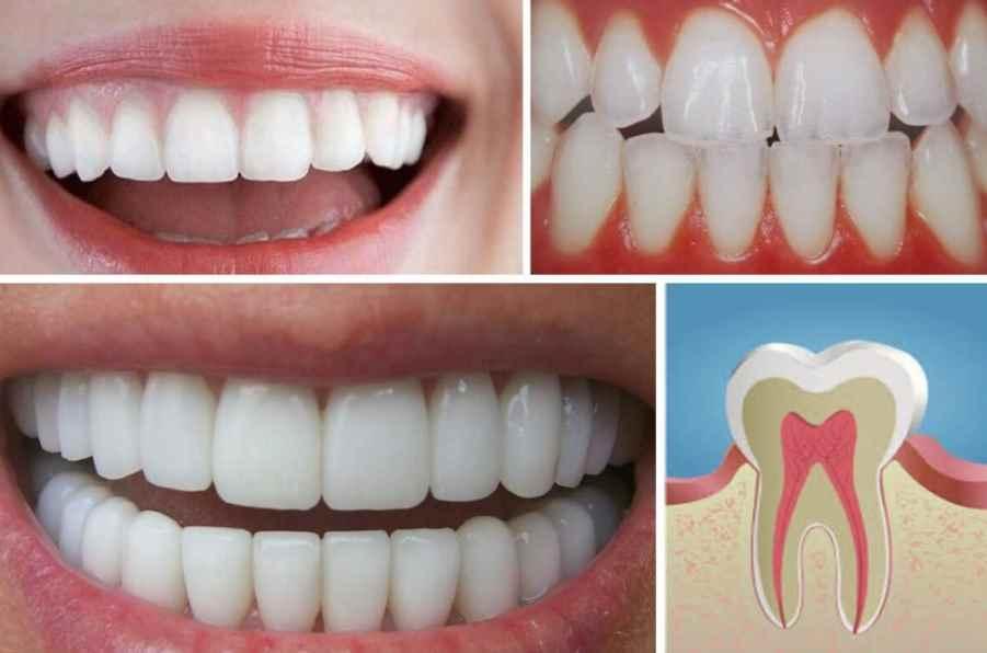 Mejores alimentos para tener los dientes sanos