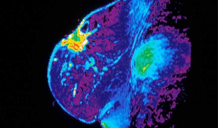 Científicos descubren proteína que elimina metástasis de cáncer de mama