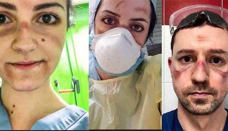Héroes sin capa, así luce el rostro de médicos que luchan día a día vs el coronavirus (fotos)